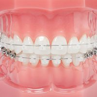 damon_clear_braces